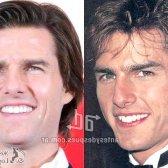 Ідеальні зуби знаменитостей